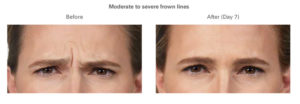 BOTOX® Cosmetic is available at Cosmetic and Restorative Dermatology