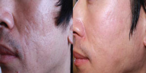 Microneedling is available at Cosmetic and Restorative Dermatology