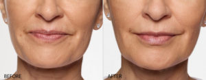 Restylane line of Fillers are available at Cosmetic and Restorative Dermatology