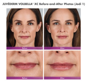 JUVÉDERM® Collection of Fillers are available at Cosmetic and Restorative Dermatology